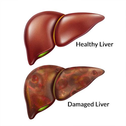 Ginger Tea: Dissolves Kidney Stones, Cleanses Liver