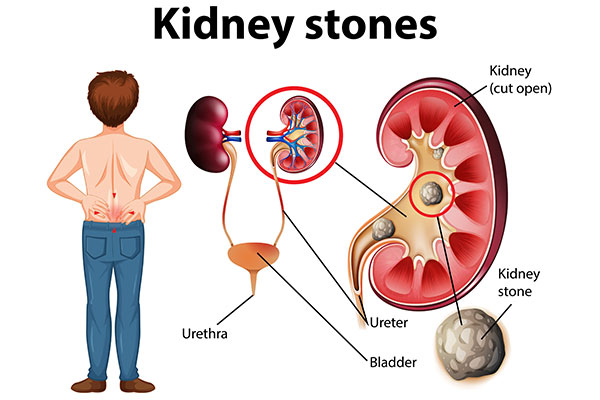 treatment-of-kidney-stones-1